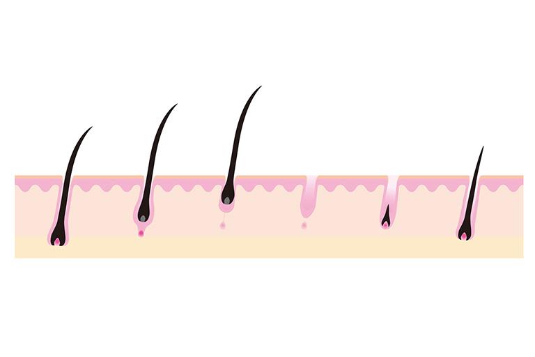 郡山市で抜け毛・脱毛治療のアークAGAクリニックによるAGA発症の解説