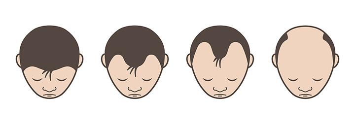 郡山市で抜け毛・脱毛治療のアークAGAクリニックによるM時型脱毛の解説