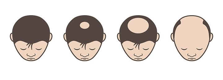 郡山市で抜け毛・脱毛治療のアークAGAクリニックによる頭頂部脱毛の解説
