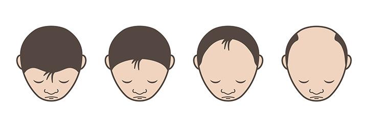 郡山市で抜け毛・脱毛治療のアークAGAクリニックによるU字型脱毛の解説