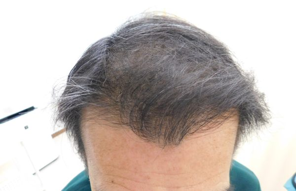 AGA・薄毛・抜け毛治療の改善事例・発毛事例