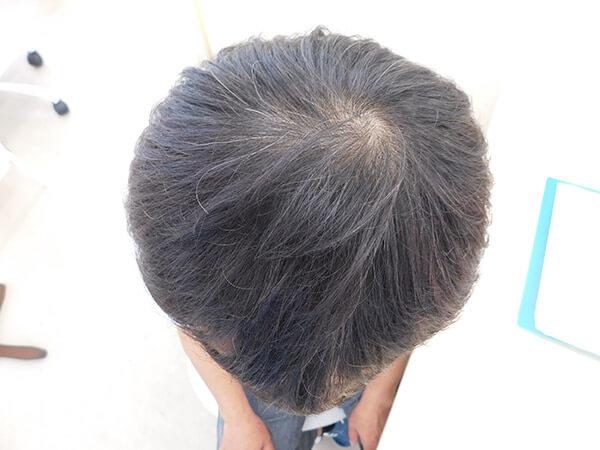 福島県郡山市でのAGA・50代男性薄毛改善事例