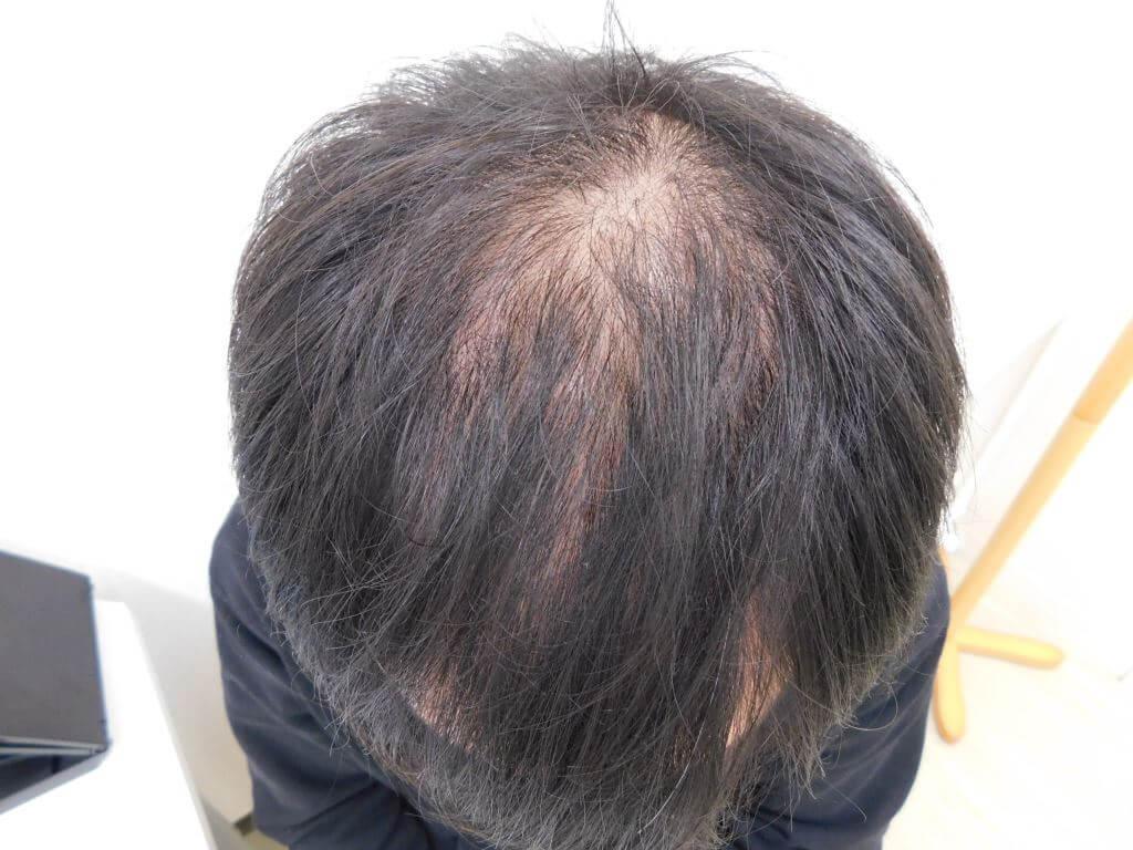 福島県郡山市でのAGA・20代男性薄毛改善事例