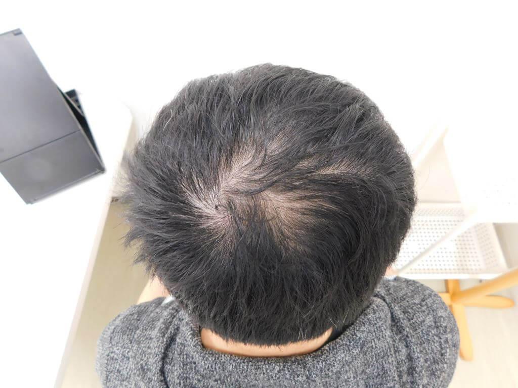 福島県郡山市でのAGA・40代男性薄毛改善事例